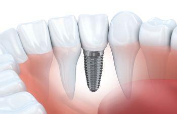 Dental Implants Fort Mill SC